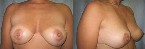 14-Breast-Lift-After.jpg