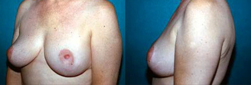15-Breast-Lift-After.jpg