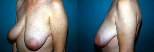 15-Breast-Lift-Before.jpg