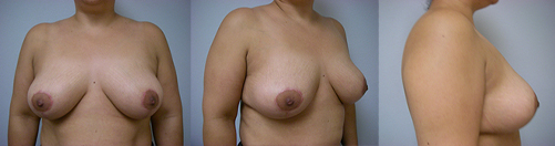 16-Breast-Lift-After.jpg