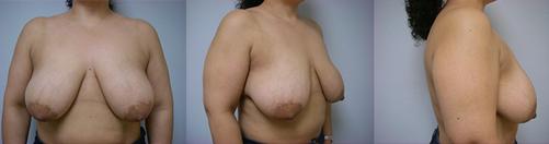 16-Breast-Lift-Before.jpg