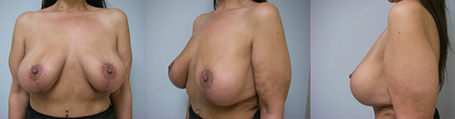 17-Breast-Lift-After.jpg