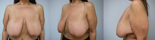 17-Breast-Lift-Before.jpg