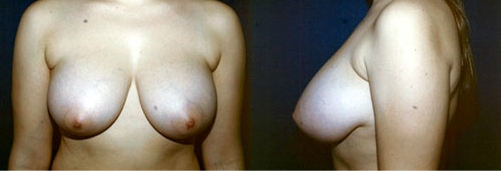 1-Breast-Reduction-Surgery-Before.jpg