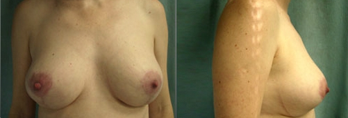 2-Breast-Reduction-Surgery-After.jpg