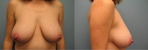 2-Breast-Reduction-Surgery-Before.jpg