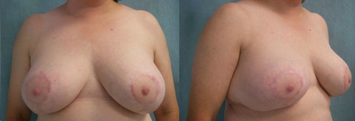 3-Breast-Reduction-Surgery-After.jpg