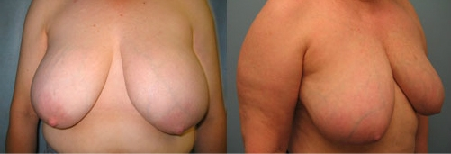 3-Breast-Reduction-Surgery-Before.jpg