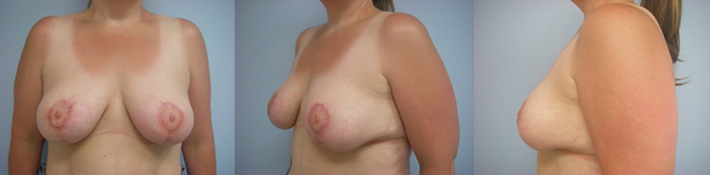 4-Breast-Reduction-Surgery-After.jpg
