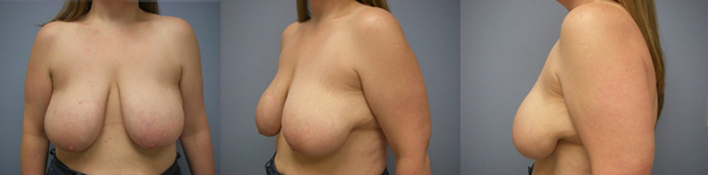4-Breast-Reduction-Surgery-Before.jpg