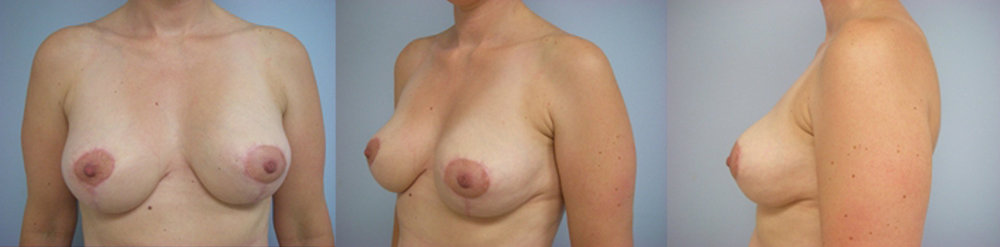 5-Breast-Reduction-Surgery-After.jpg