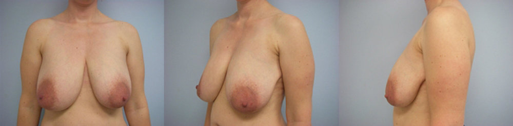 5-Breast-Reduction-Surgery-Before.jpg