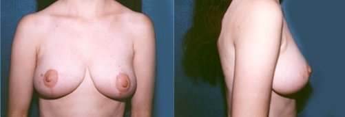 6-Breast-Reduction-Surgery-After.jpg