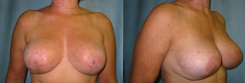 7-Breast-Reduction-Surgery-After.jpg