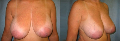 7-Breast-Reduction-Surgery-Before.jpg