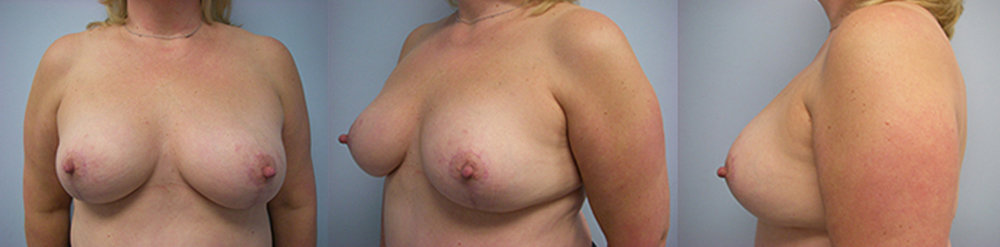 8-Breast-Reduction-Surgery-After.jpg