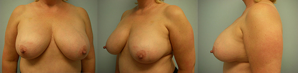 8-Breast-Reduction-Surgery-Before.jpg