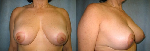9-Breast-Reduction-Surgery-After.jpg