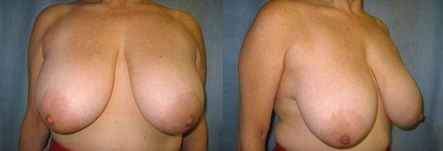 9-Breast-Reduction-Surgery-Before.jpg