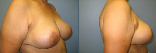 10-Breast-Reduction-Surgery-Afte.jpg