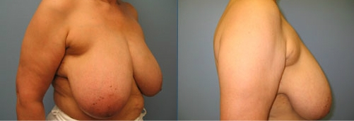 10-Breast-Reduction-Surgery-Before.jpg