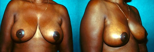 11-Breast-Reduction-Surgery-After.jpg