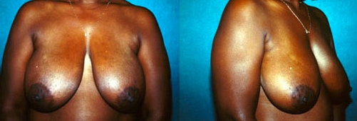 11-Breast-Reduction-Surgery-Before.jpg