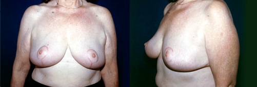 12-Breast-Reduction-Surgery-After.jpg