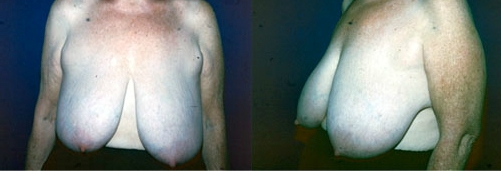 12-Breast-Reduction-Surgery-Before.jpg