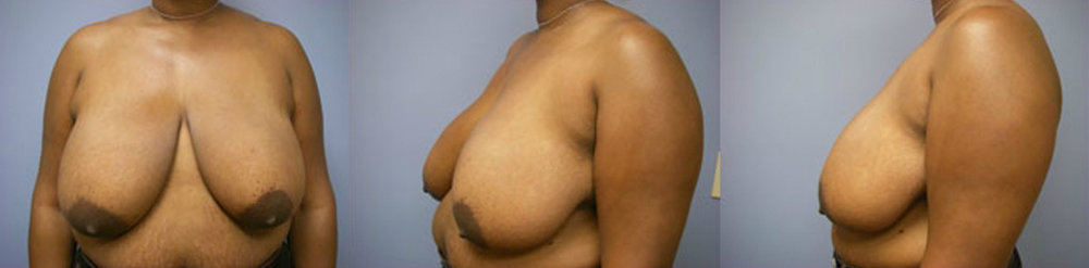 13-Breast-Reduction-Surgery-Before.jpg