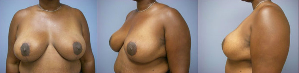 13-Breast-Reduction-Surgery-After.jpg