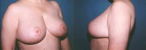 14-Breast-Reduction-Surgery-After.jpg