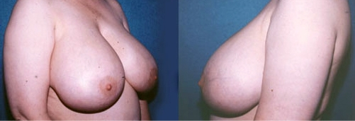 14-Breast-Reduction-Surgery-Before.jpg