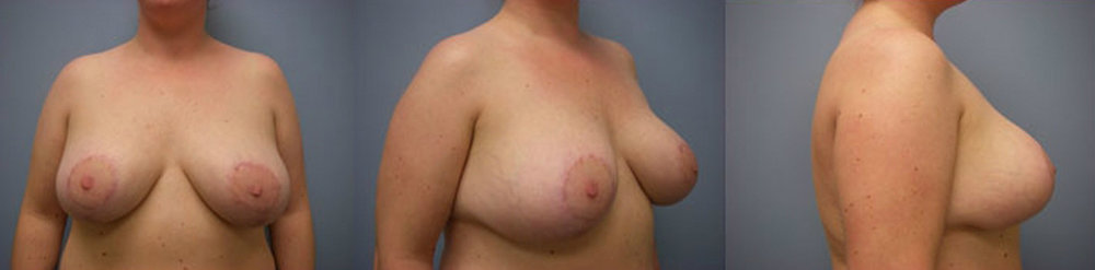15-Breast-Reduction-Surgery-After.jpg