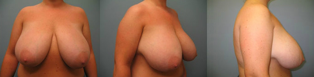15-Breast-Reduction-Surgery-Before.jpg