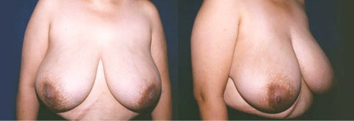 16-Breast-Reduction-Surgery-Before.jpg