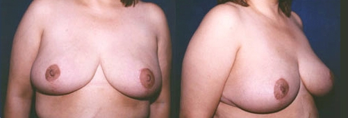 16-Breast-Reduction-Surgery-After.jpg