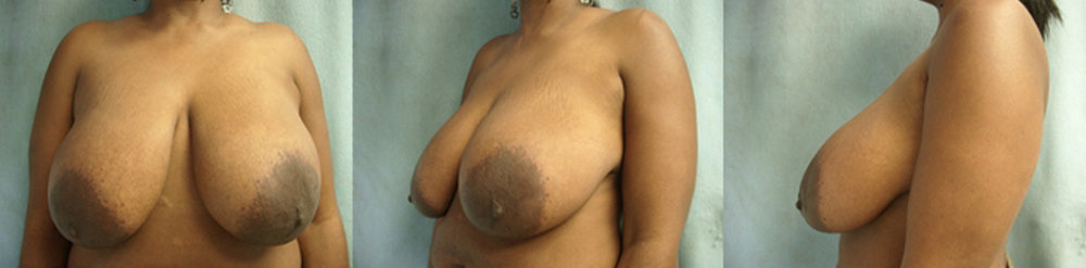 17-Breast-Reduction-Surgery-Before.jpg