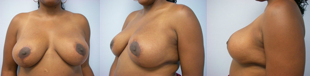 17-Breast-Reduction-Surgery-After.jpg