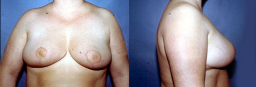 18-Breast-Reduction-Surgery-After.jpg