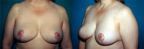19-Breast-Reduction-Surgery-After.jpg