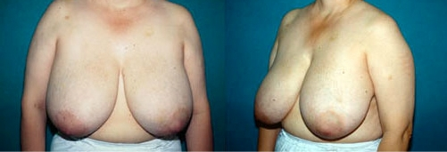 19-Breast-Reduction-Surgery-Before.jpg