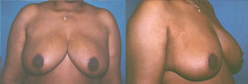 20-Breast-Reduction-Surgery-After.jpg