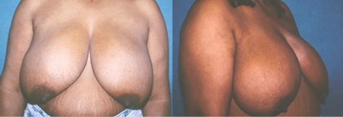 20-Breast-Reduction-Surgery-Before.jpg