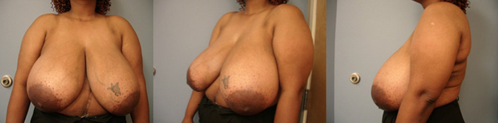 21-Breast-Reduction-Surgery-Before.jpg