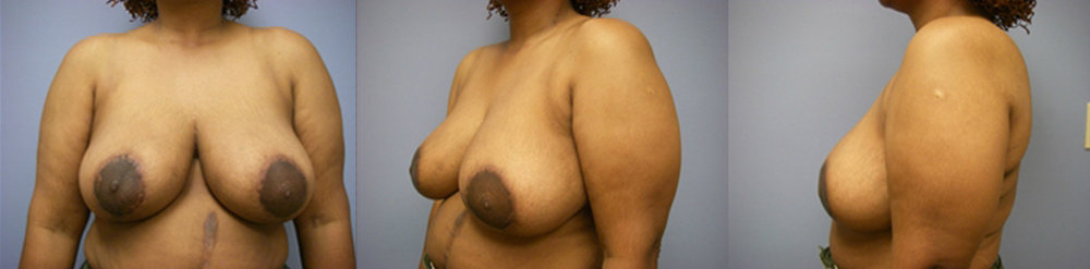 21-Breast-Reduction-Surgery-After.jpg