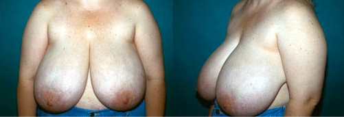 22-Breast-Reduction-Surgery-Before.jpg