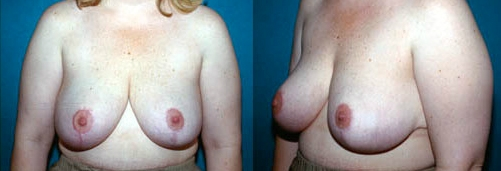 22-Breast-Reduction-Surgery-After.jpg