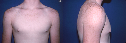 1-Gynecomastia-Correction-Male-Breast-Reduction-After.jpg