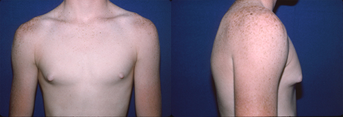 1-Gynecomastia-Correction-Male-Breast-Reduction-Before.jpg
